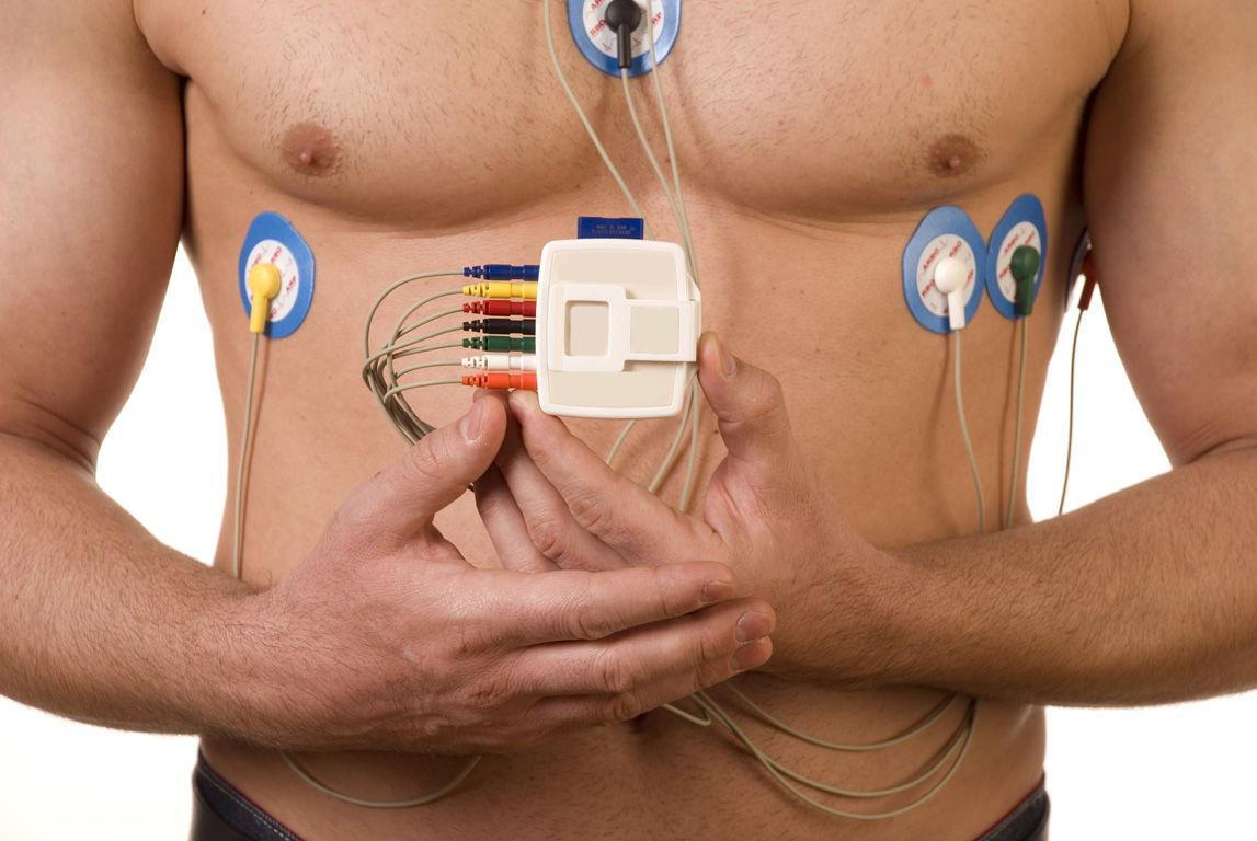 Holter Cardiaco / ECG Dinamico 24 H
