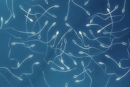 Analisi del liquido seminale o spermiogramma